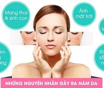 Có nên điều trị nám da, tàn nhang bằng Đông y